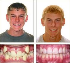 Before And After Braces Picture | Actual Damon Braces - not an actual patient of Dr. Baby and Dr. Rojas
