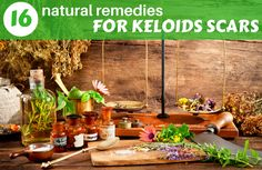 Keloids are large scars which become annoyingly prominent because fibrous tissues overgrow. Any injury can turn into a keloid, whether it occurred from acne, cuts, burns, scrapes, bites or even a deeper wound or a surgical procedure. Keloids continue their growing process over the years and collagen in excess accumulates in that particular area. They …