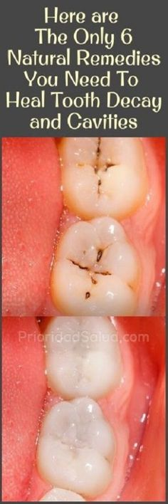 Special For Health | The Only 6 Natural Remedies You Need To Heal Tooth Decay and Cavities