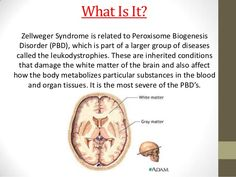 zellweger syndrome - Google Search