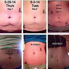 #Neriumfirm #BodyContouring Cream Jahughes.Realresults.com/body