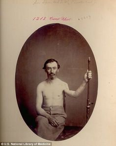 J.H. Jaycox from the New York volunteers had five-and-a-half inches of his humerus bone removed