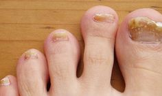 Toenail fungus and athlete's foot creams and sprays cost a fortune, and you have to continue using them for weeks and weeks, which usually means you have to purchase additional creams/sprays to continue the treatment. Not anymore though as today I am. Toenail Fungus Remedies, Toenail Fungus Treatment, Nail Treatment, Athletes Foot Cream, Toe Fungus, Fungal Nail Infection, Nail Oil, Natural Remedies, Health Tips