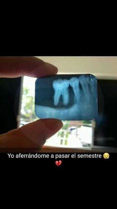 Dentistry, Funny Things, Tooth, Facial, Medicine, Stickers, College Jokes, Dental Anatomy, Friendship Love