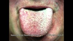 The Symptoms of Mold Exposure and Mold Illness from Black Toxic Mold Exp...