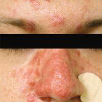 Usual skin lesions in lupus pernio.