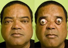 Claudio Paulo Pinto from Rio de Janeiro, Brazil can pop his eyeballs out of their sockets, upto 9 mm