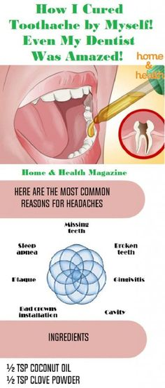 Dealing with toothache can be bad and damaged roots hurt a lot.