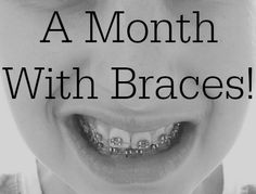 Northumberland Mam: A month with braces....