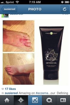 Amazing Defining Gel is great for eczema, sunburns, and spider veins! luv2restoreU.myitworks.com  call/text me 313-468-2332