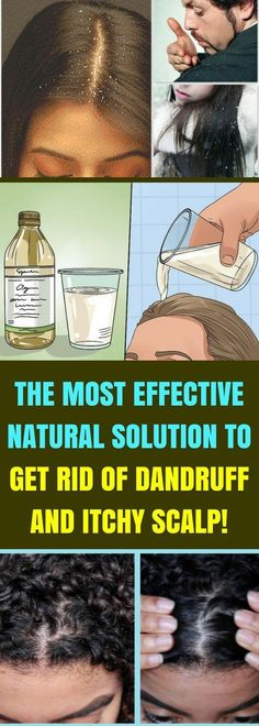 shampoos can be an effective means of treating this common cosmeti., Anti-dandruff shampoos can be an effective means of treating this common cosmeti., Anti-dandruff shampoos can be an effective means of treating this common cosmeti. Itchy Scalp Remedy, Home Remedies For Dandruff, Home Health Remedies, Natural Health Remedies, Natural Cures, Herbal Remedies, Hair Remedies, Natural Healing, Dandruff Solutions