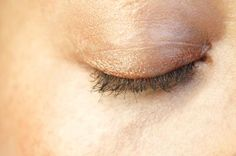 How To Tighten Loose Skin On The Eyelids | LIVESTRONG.COM