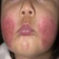 Several Dermatitis Pictures Including Atopic, Contact, Seborrheic, Cause & Treatment