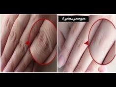How to Make Your Hands Look 5 Years Younger Overnight! Wrinkle-free smooth fair hands - Care - Skin care , beauty ideas and skin care tips Beauty Care, Beauty Skin, Beauty Hacks, Face Yoga, Face Wrinkles, Pretty Hands, Beautiful Hands, Hand Care, Health And Beauty Tips