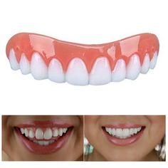Instant Smile Veneer - Over 100,000 SOLD - #1 Solution For Perfect Smile