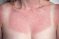 5 Hausmittel gegen Sonnenbrand