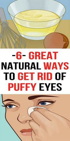 Natural Remedies That Will Help You To Reduce Swelling Under Eyes!