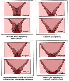 Effacement & Dilation