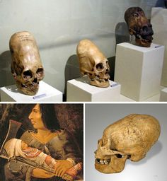 Elongated Skulls of Peru and Mexico
