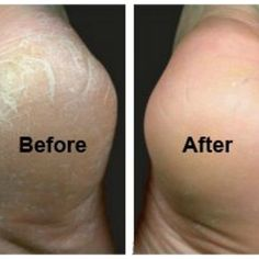 How to Fix Cracked Feet Fast