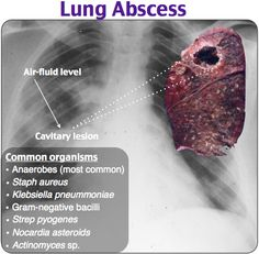 43 Best Pulmonary images in 2015 | Emergency medicine, Ems