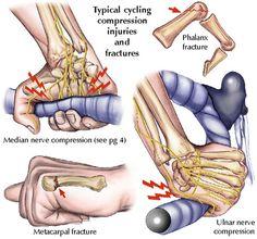 Bike Injuries: Collision-related trauma #cyclinginjuries