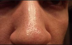 Big Pores Causes & How to Get Rid of Big Pores #UnclogPores