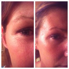 These are my results after just 5 minutes! After 2 months now, my skin is like it was 10 years ago. After 25 years of using other high end products, facials and even micro-dermabrasion, I have never had results like these. My skin continues to improve! High End Products, Key Ingredient, Facials, 2 Months, 10 Years, Health And Wellness, Moisturizer, Moisturiser, Health Fitness