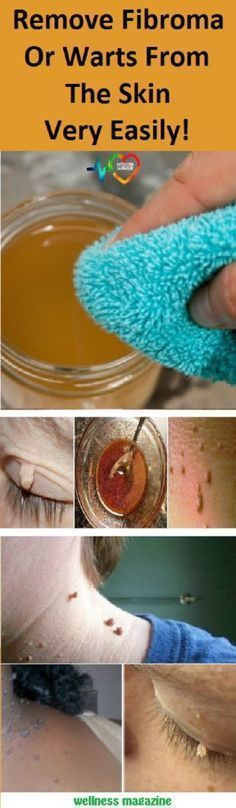Remove Fibroma Or Warts From The Skin Very Easily! Published on March 7, 2017 | Leave a response