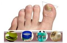 Remedies For Toenail Fungus Listerine For Fungus Removal - Appearing fungi infection in toenails is very common problem and most of individuals do not take notice of this infection but it can turn … Toenail Fungus Remedies, Acne Remedies, Fungus Toenails, Fingernail Fungus, Making Wine At Home, Foot Soak Recipe, Wine Making Equipment, Toe Fungus, Beauty