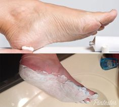 shaving cream and Listerine makes an awesome foot mask that will make those cracked heels feel so smooth.
