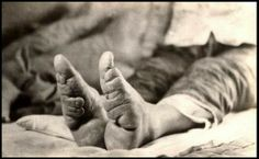"""The end result of a lifetime of Chinese Foot Binding.  Women with bound feet never uncovered them, even when otherwise unclothed.  The feet were still covered with colorful slippers, continuing the """"eroticism"""" of the tiny foot unseen,"""