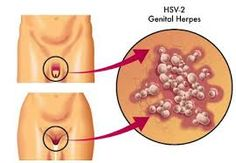 Herpes simplex virus (HSV), which can lead to genital herpes, is a commonly STDs that affects both genders. Genital Herpes Cure, Herpes Simplex Virus, Home Remedies For Herpes, Top 10 Home Remedies, Natural Treatments, Natural Cures, Alternative Treatments, Cold Sore, Herpes Remedies