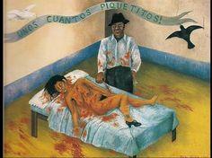 Frida Kahlo Suas obras haviam sempre muito sangue e acidentes/problemas de saúde