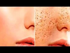 How to get rid of Large OPEN PORES permanently & Acne Scars NATURALLY AT HOME by using aloe Vera gel - YouTube