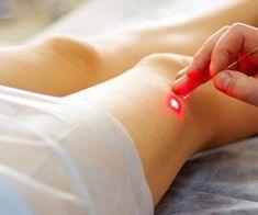 Bacak Kılcar Damar Varis Tedavileri