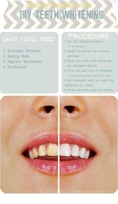 Como conseguir unos dientes blancos