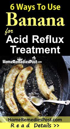 Acid Reflux Foods to Avoid Acid Reflux Diet Plan, Acid Reflux Recipes, Stop Acid Reflux, Foods For Acid Reflux, Acid Reflux Treatment, Treatment For Heartburn, Acid Reflux Home Remedies, Natural Remedies For Heartburn, Heartburn During Pregnancy