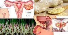 Research Shows: Ginger Destroys Prostate Cancer, Ovarian And Colon Cancer Better…