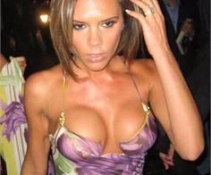 Boobs or Volleyballs: The 10 Worst Celebrity Boob Jobs