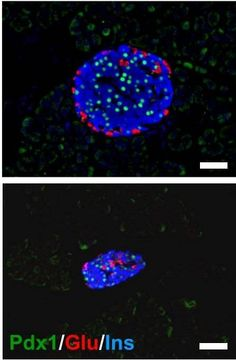 Researchers identify a previously unknown developmental cause of diabetes.
