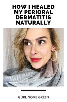 Sharing my journey healing my perioral dermatitis naturally.  From how I got the skin condition, to how I healed it using natural remedies.  Plus, a free download on the five things that helped me the most!  #perioraldermatitis #naturalblogger #organicblog #healthyskincare #cleanskincare #naturalmom #perioraldermatitisremedies #perioraldermatitistreatments #perioraldermatitisdiet #perioraldermatitiscauses #perioraldermatitisproducts