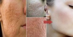 People that have oily skin also have big pores. They hate the pores and need to make them less visible. You can get many items on the market for tight skin and reduce the pores but they are not so … Diy Beauty, Beauty Hacks, Sara Beauty, Beauty Tips, Skin Tightening Mask, Face Home, Scar Removal Cream, Shrink Pores, Minimize Pores