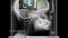 Lectura de Radiografía Cefalométrica