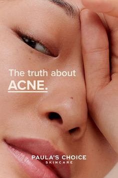 Stop believing these 6 acne myths to start having the beautiful, clear skin you want. Acne Out, Paula's Choice Skincare, Natural Makeup Looks, Clear Skin, Believe, Advice, Skin Care, Tips, Beautiful