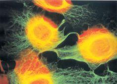 Células troncales (Stem cell) de endometrio humano cultivadas in vitro hasta semi-confluencia y teñidas con doble marca para ADN