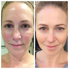 Before & After. Here's are the Rodan + Fields products she has been using. Redefine regimen, eye cream, AMP MD (3x a week) and Macro E(1x a week). In September, she used the Reverse Accelerator Pack for 1 month. Now she uses the original routine with the Redefine! The only makeup she is wearing is mascara in the after pic. She's 45 years old! Doesn't her skin look AMAZING! https://visibleproof.myrandf.com/Shop/REDEFINE