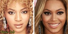 Beyonce Plastic Surgery Before After Nose Job