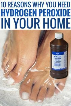 10 Reasons Why You Need Hydrogen Peroxide In Your Home life hacks every girl and woman should know tips and tricks uses for hydrogen peroxide cleaning with hydrogen peroxide cleaner and baking soda food grade uses for skin. House Cleaning Tips, Diy Cleaning Products, Deep Cleaning, Spring Cleaning, Cleaning Hacks, Cleaning Carpets, Green Cleaning Recipes, Cleaning Schedules, Cleaning Wood