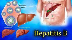 Hepatitis B disease is a liver disease similar to jaundice. According to modern medical research, today 257 billion people worldwide suffer from Hepatitis B disease. Viral Infection, Infection Control, Ayurvedic Practitioner, Le Psoriasis, Body Fluid, Head Start, Health Tips, Tips
